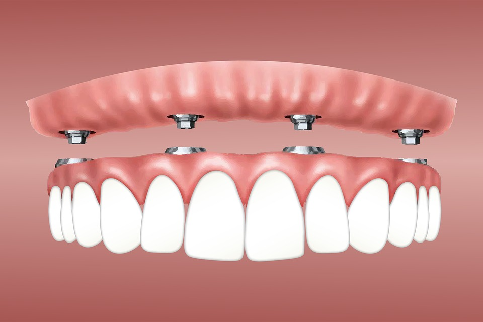 tooth implant process in Lakeland